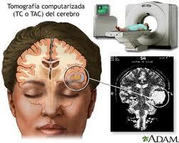 TAC del cerebro